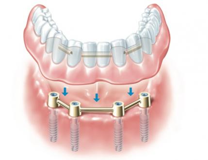 Implant Dental Treatment
