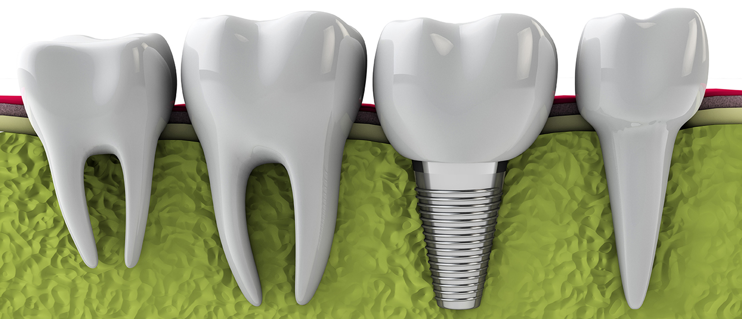 Implant Odontotheraphy